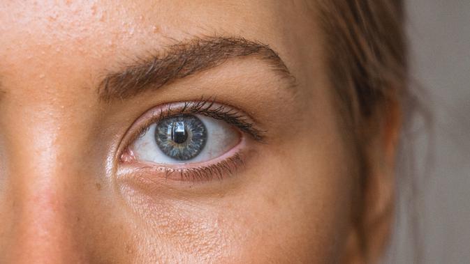 8 Cara Alami Menghilangkan Kantung Mata yang Kendur 2