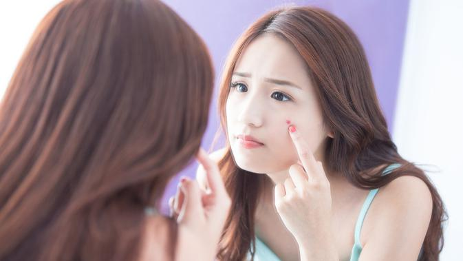 Produk Skincare yang Ampuh untuk Mengatasi Comedonal Acne 2