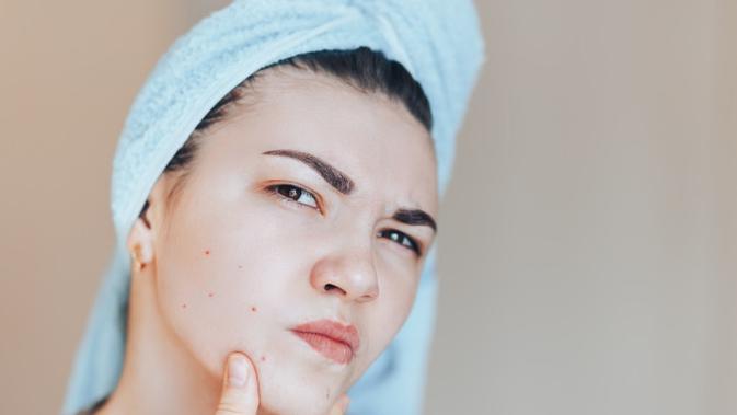 Jangan Malas! 5 Cara Menghilangkan Daki di Leher dengan Bahan Alami 2
