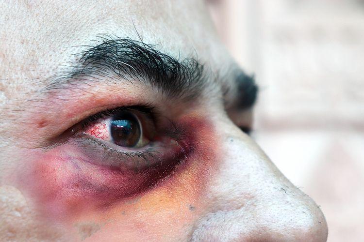 Bahaya! Infeksi 'Jamur Hitam' Mengintai Penyintas Covid-19, Mohon Dibaca! – FAJAR 2
